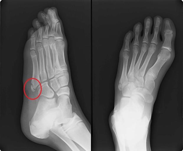 第5中足骨基部骨端線離開