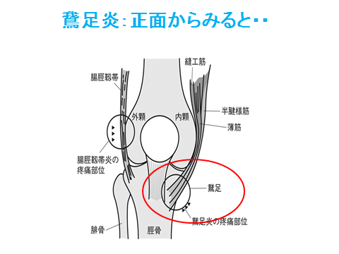 鵞足炎シェーマ