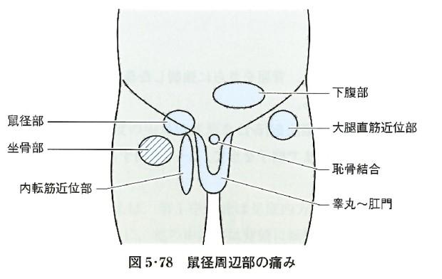 股関節周辺部の痛み