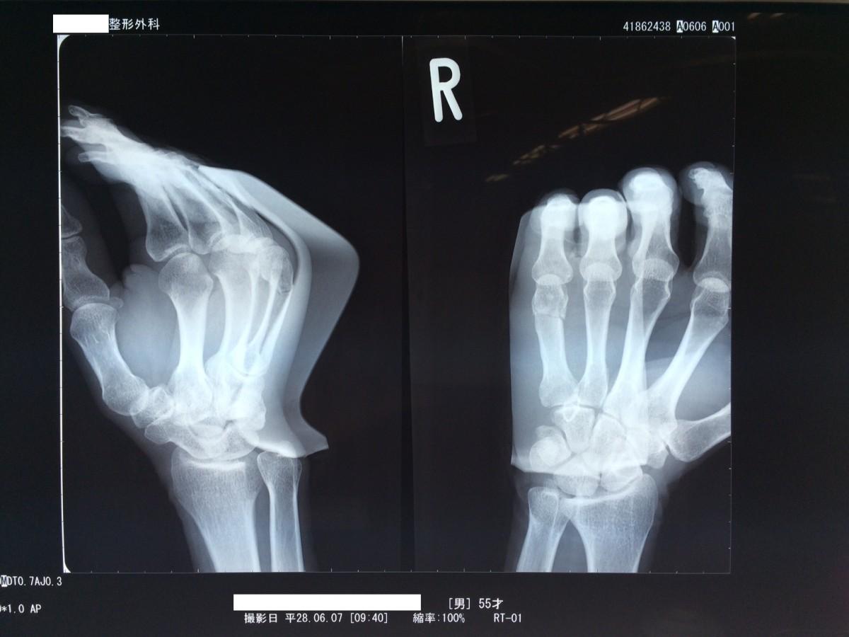 修正1606ボクサー骨折第5中手骨頸部