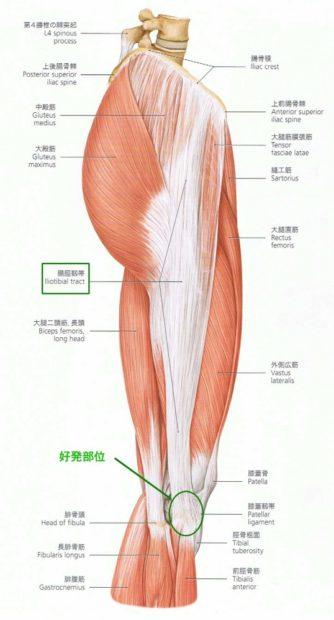 c1d1b43289 太ももの横にある「腸脛靭帯」という靭帯が膝の外側で摩擦を繰り返し炎症を起こすことをいいます。