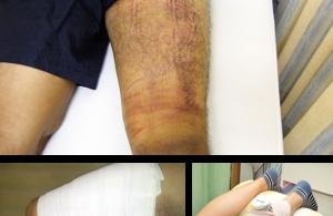 挫傷治療の紹介写真